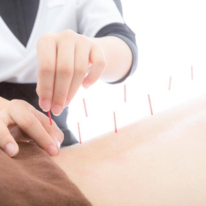 Uddan dig til akupunktør ved Lasota Terapi Akademi